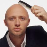 методы борьбы с алопецией у мужчин