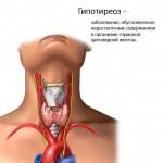Причин гипотиреоза