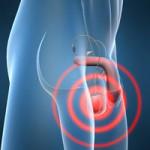 testicular-cancer