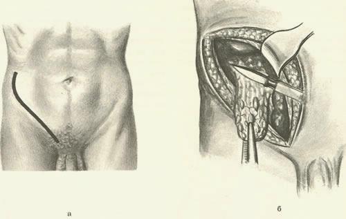 Член без яички кастрация
