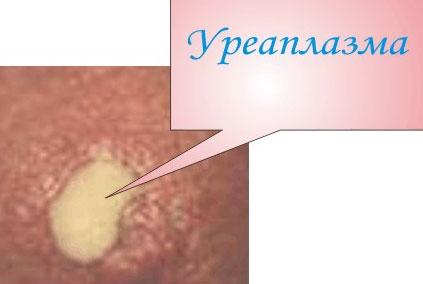 Уреаплазма парвум и беременность