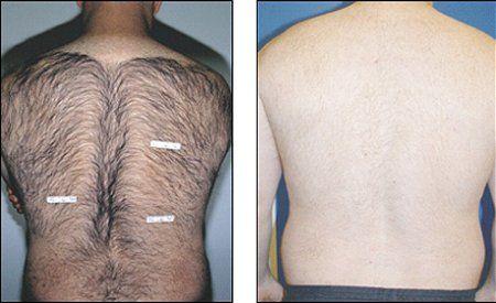 Почему у мужчин растут волосы на спине