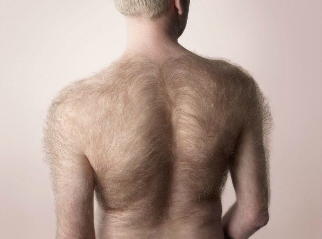 Убрать волосы на спине у мужчин