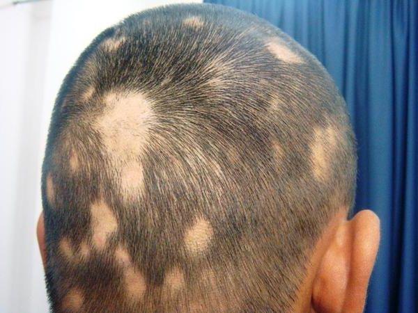 Что делать чтобы волосы на лысине выросли
