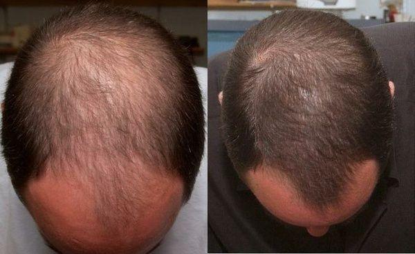 Как после наркоза чем лечить волосы