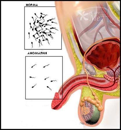 Можно ли лечить подвижность спермы даже