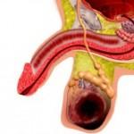опухоли яичка у мужчин