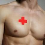 Рак молочной железы  у мужчин